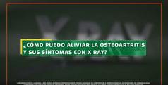 xray_alivioysintomasdeosteoartritis