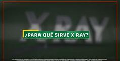 xray_paraquesirve