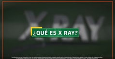 xray_quees