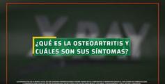 xray_queesysintomasdeosteoartritis